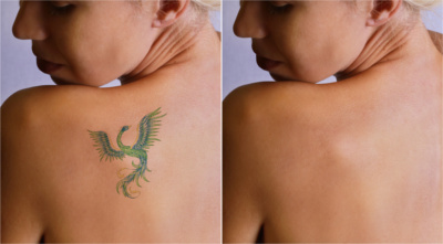 Laser Tattoo Removal Specialists In Waterford MI - American Pride Tattoos - TattooRemoval1