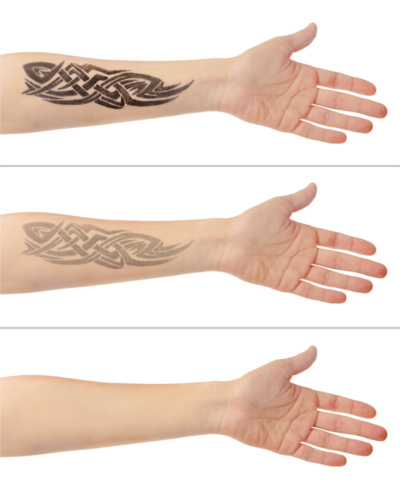 Laser Tattoo Removal Specialists Near Commerce Township MI - American Pride Tattoos - TattooRemoval2